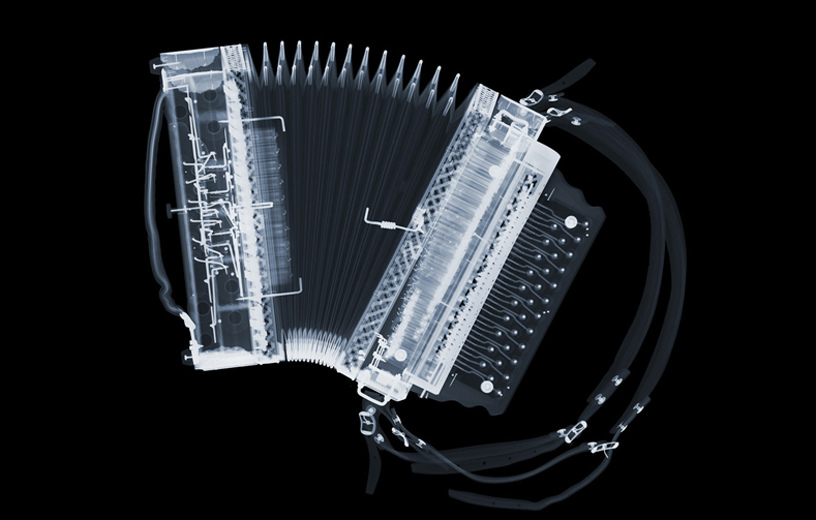 X-Ray-Accordion